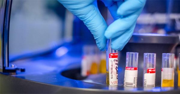 #CoronaVirus: salgono a 20 i laboratori siciliani per analizzare i tamponi